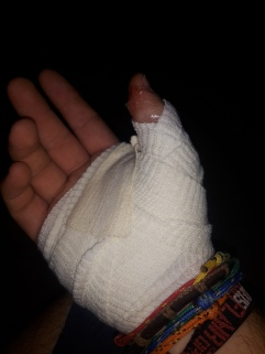 Hab mir mein Daumen einbisschen verletzt^^